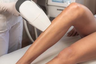 Depilación definitiva en piernas.