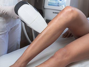 Depilación definitiva de piernas.
